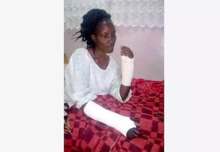 Baringo woman hospitalised after serious beating by AP husband