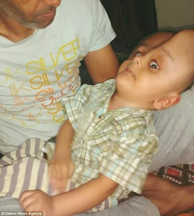 Kind hearts! Baby with 73cm BRAIN receives lifesaving help from strangers (photos)