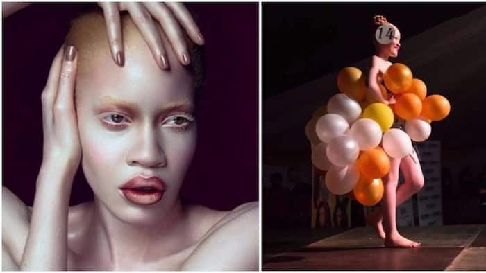 Zimbabwe set to hold inaugural Miss Albinism beauty pageant in effort to fight stigma