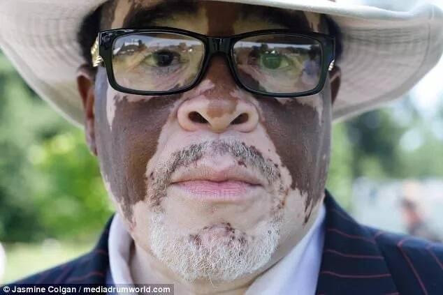 "Colgan also hopes to inspire people with vitiligo to be proud of their skin. Photo"" Jasmin Colgan"