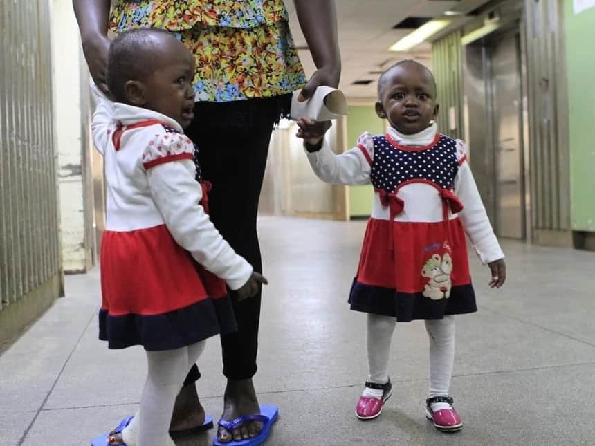 Kenyans moved to tears after seeing successfully separated twins show remarkable improvements
