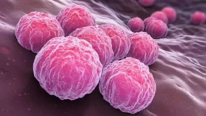 Chlamydia symptoms in men, signs and symptoms of Chlamydia, Chlamydia symptoms in men