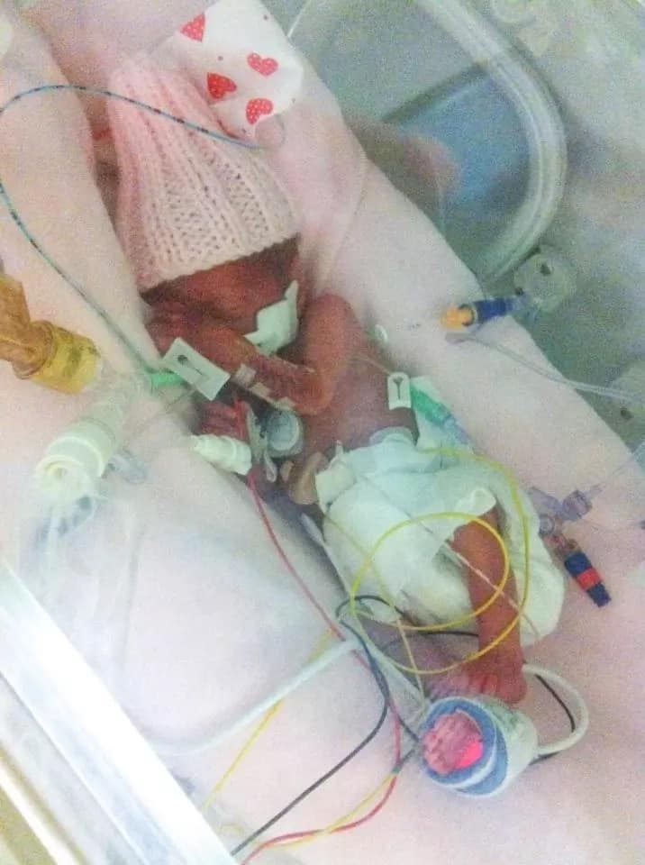 Mom expected a stillbirth, but instead receives MIRACLE twins (photos)