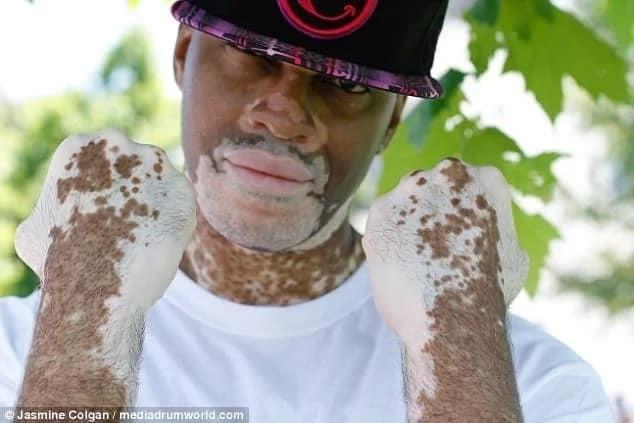 Colgan's project highlights people living with vitiligo. Photo: Jasmin Colgan