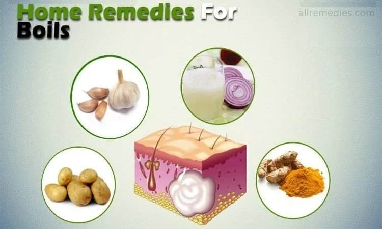 Home remedies for boils on private area ▷ Tuko co ke