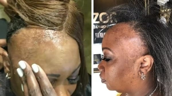 Dangerous side effects of constantly wearing weaves every lady who loves herself should know