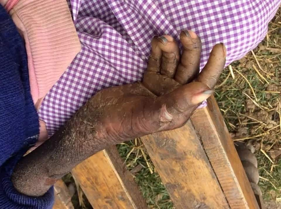 Mother abandons disabled daughter with strange skin condition in Nyeri