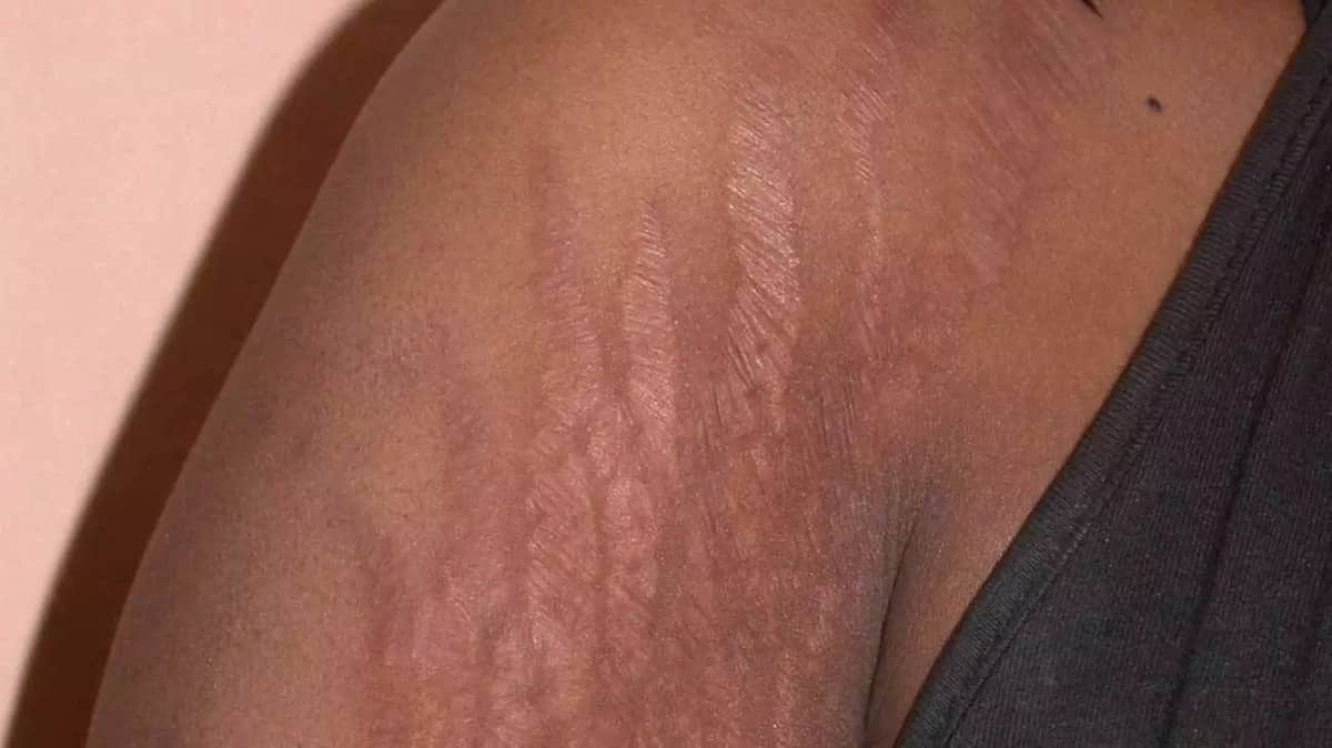 How to get rid of stretch marks How to remove stretch marks Causes of stretch mark