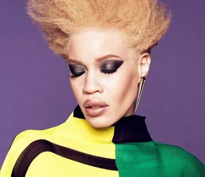 Defying odds! Diandra Forrest becomes first albino model to front a major global beauty campaign