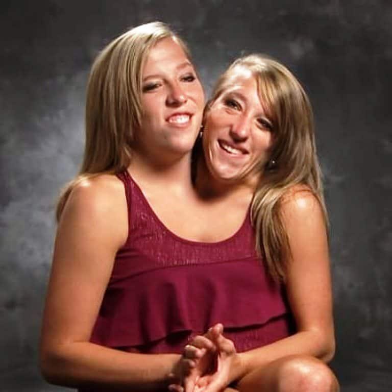 Povestea gemenelor siameze Abigail și Brittany Hensel. Cum arată viața lor la 31 de ani