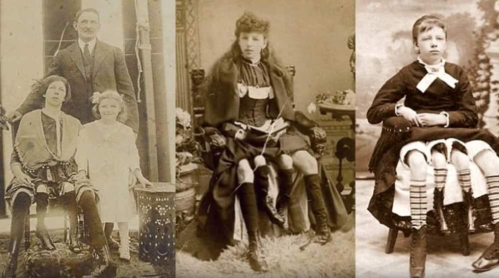 """Josephine Myrtle Corbin, """"the 4-legged woman"""": her story, facts, and photos"""