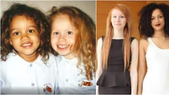 Lucy and Maria: Meet Pretty Twin Sisters with Rare Black, White Skin Colours