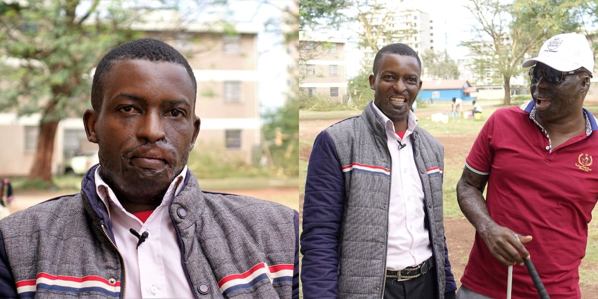 Nairobi man forgives attacker who sprayed his face with acid