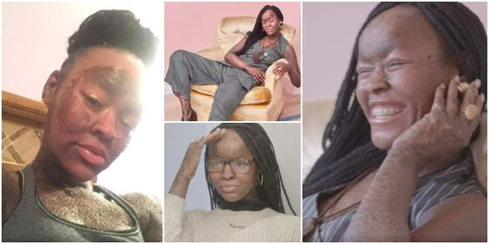 Jeyda, 21, sheds skin every ten days and doesn't sweat. Photo Credit: Screengrabs from video shared by Shake My Beauty.