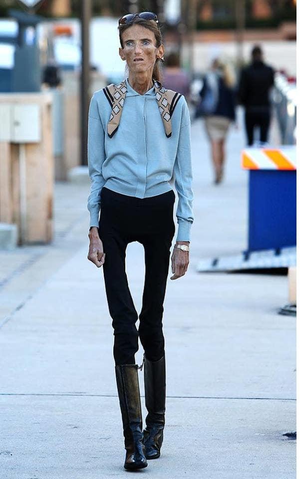 skinniest woman alive