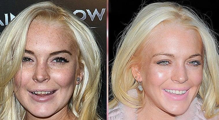 celebrities with bad teeth