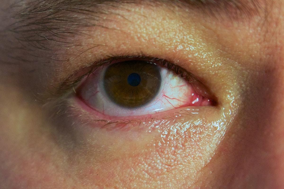 Red eyes, bloodshot eyes