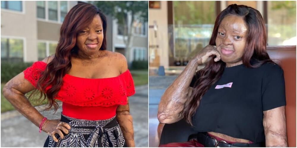 Kechi Okwuchi: Singer celebrates 15 years after surviving tragic plane crash