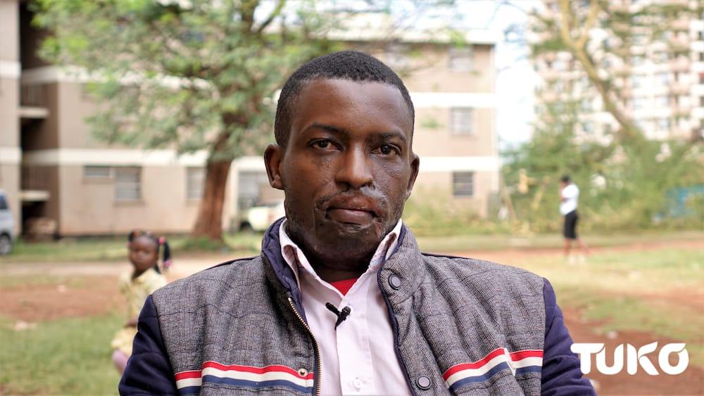 Nairobi man forgives attacker who sprayed his face with acid